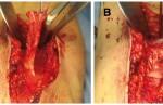 A Bicipite distale isolato in sede chirurgica; B bicipite distale reinserito sulla tuberosità radiale
