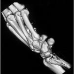 TC 3D della frattura dell'uncino dell'osso uncinato