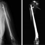 a) Esame radiografico del terzo medio-sup dell'omero - b) Pseudoartrosi con distacco di parte della corticale mediale sovracondiloidea