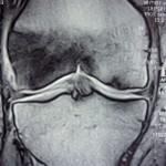 RMN con riscontro di iniziale necrosi del CFM