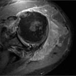 L'esame RM evidenzia la rottura massiva irreparabile della cuffia con abbondante versamento e formazione di tessuto ipertrofico simil sinoviale