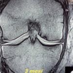 Controllo RMN dopo 3 mesi, paziente asintomatico