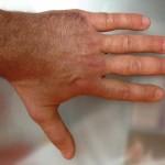 Esame clinico a 90 gg. Articolarità completa e nessuna deviazione assiale