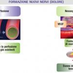 Lo stimolo per la formazione dei nuovi vasi è dato da diversi fattori tra cui, il più importante, il vascular endothelial growth factor (VEGF).