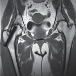 osteonecrosi