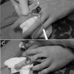 I punti chiave dell'intervento: incisione a Z, approccio trans-tendineo, curettage, innesto di idrossiapatite, stabilizzazione con fili di Kirschner, per la esigua rappresentazione di tessuto sano, al fine di prevenire una frattura patologica