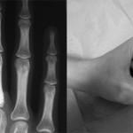 """Il recupero morfologico è completo a 6 mesi. Il """"range"""" di motilità del terzo dito della mano sinistra è completamente recuperato, con equiparazione al test con dinamometro di Jamar nella forza di presa bilateralmente"""